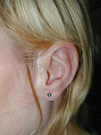 Epithesis ear
